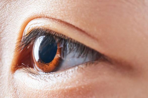 Kính áp tròng làm chậm tiến triển cận thị - Ảnh 1.