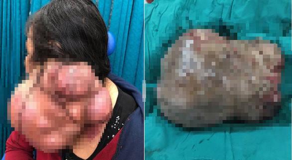 10 bác sĩ phối hợp cắt khối u khủng 3kg trên cổ người phụ nữ - Ảnh 2.