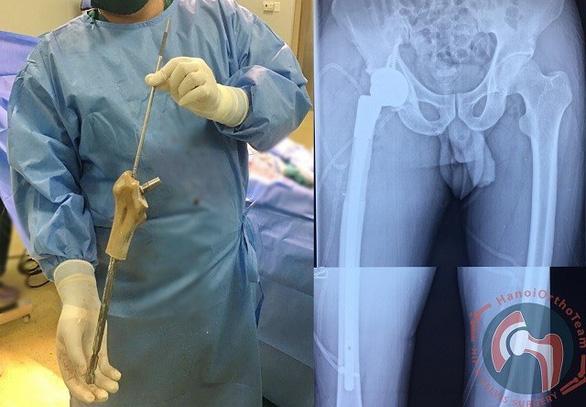 Ghép xương đùi nhân tạo in 3D cho bệnh nhân có khối u phì đại - Ảnh 1.