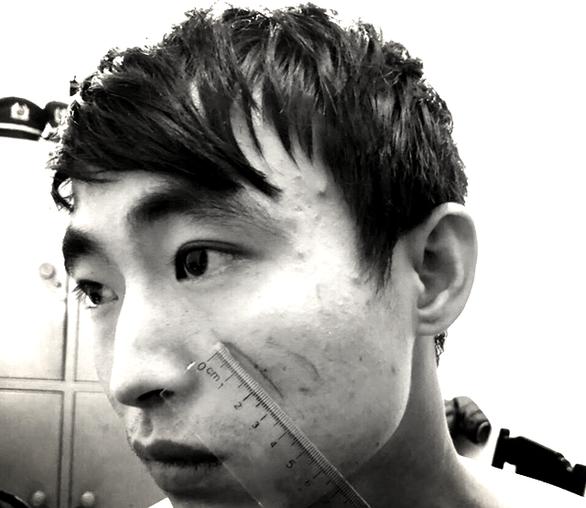 Khởi tố vụ án nữ sinh bị sát hại trong nhà nghỉ ở Sầm Sơn - Ảnh 1.