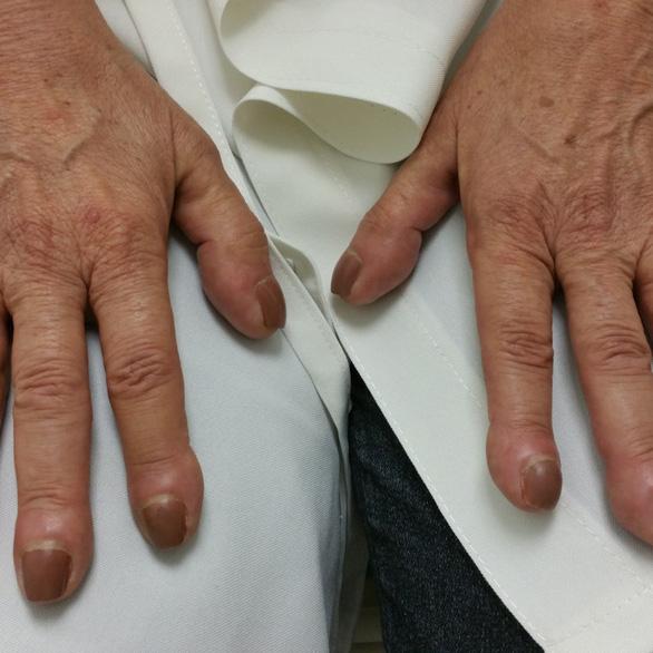 3 dấu hiệu ở ngón tay cảnh báo bạn có thể bị ung thư phổi - Ảnh 2.