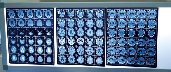 Mẹ ung thư dừng điều trị để sinh con chấp nhận khối u di căn lên não - Ảnh 1.