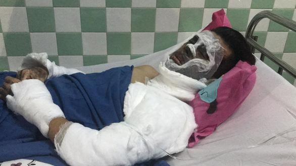 Thủ tướng chỉ đạo khẩn trương điều tra vụ Việt kiều bị tạt axit - Ảnh 2.