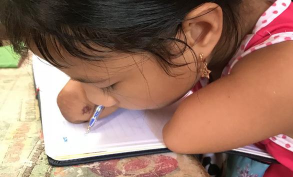 Ước mơ của cô học trò lớp 3 không tay, không chân - Ảnh 2.