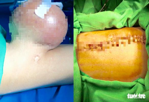 Cắt bỏ khối u 2 kí trên đùi người đàn ông suốt 12 năm - Ảnh 1.
