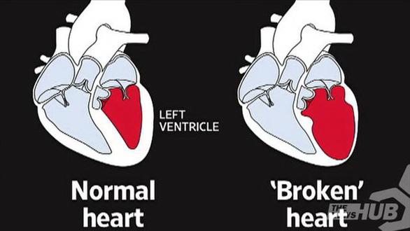 Hội chứng trái tim tan vỡ là do đâu? - Ảnh 2.