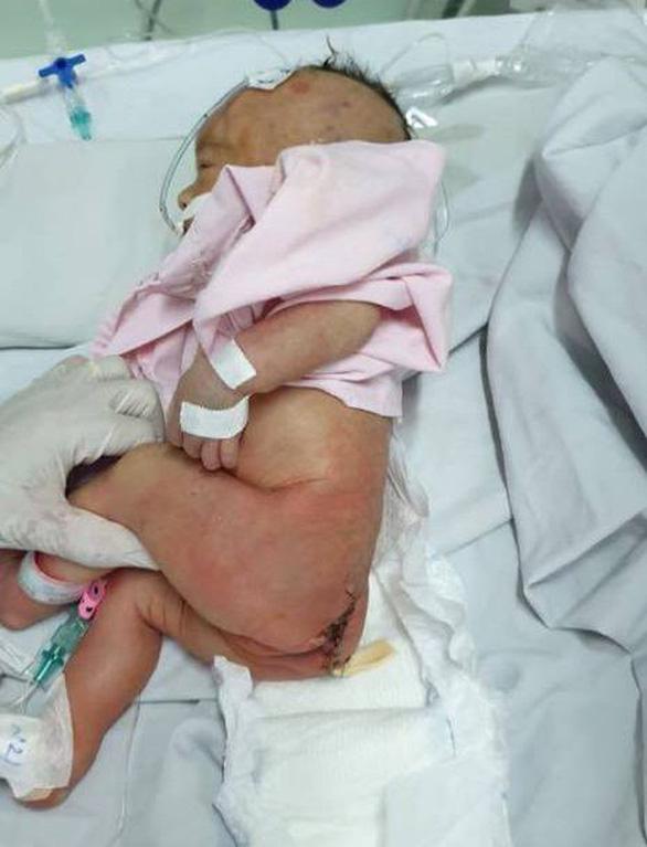 Cứu sống bé gái sơ sinh có bướu quái nặng gấp 1,5 lần cơ thể - Ảnh 2.