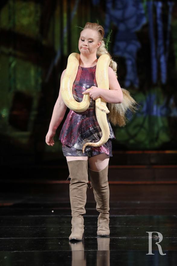 Madeline Stuart - người mẫu Down nổi tiếng - Ảnh 7.
