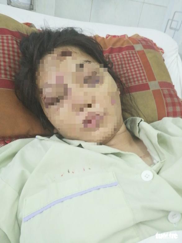 Khởi tố kẻ chủ mưu đánh sẩy thai cô gái 18 tuổi - Ảnh 1.