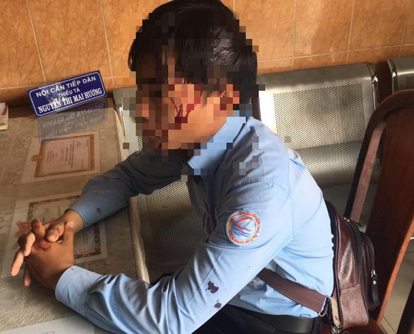 Nhân viên đi ghi chỉ số nước bị chó cắn, lại bị chủ chó đánh bể đầu - Ảnh 1.