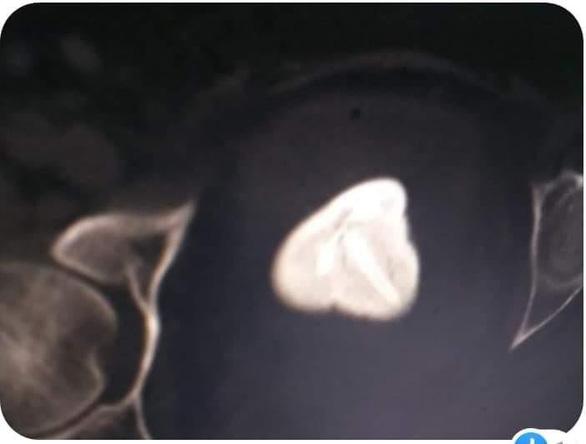 Vòng tránh thai đi lạc vào bàng quang, tạo sỏi gần 6cm - Ảnh 2.
