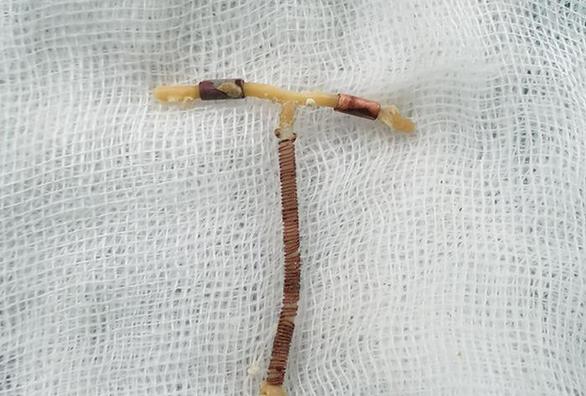 Vòng tránh thai đi lạc vào bàng quang, tạo sỏi gần 6cm - Ảnh 1.