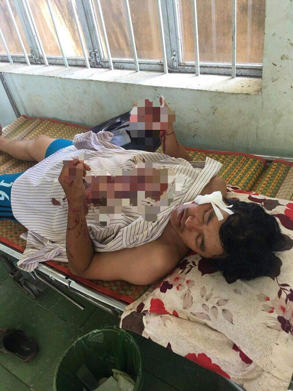Khởi tố vụ cát tặc chém xã đội trưởng ở Bình Thuận - Ảnh 1.