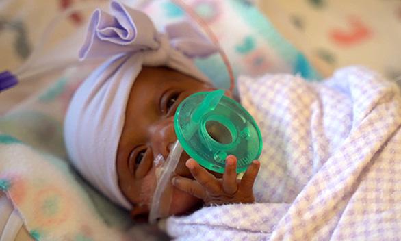 Em bé nhỏ nhất thế giới nặng 243 gram sống sót kỳ diệu - Ảnh 1.