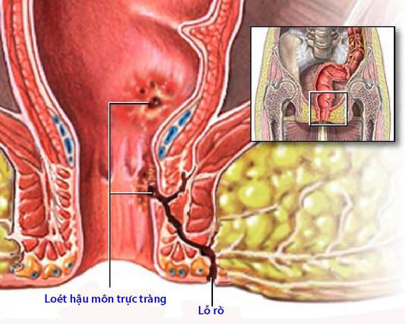 Bệnh Crohn quanh hậu môn - Ảnh 1.