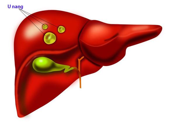 Nang gan, cách phân biệt các nang ở gan. - Ảnh 1.