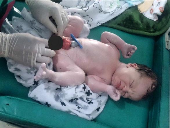 Dị tật sinh dục và tiết niệu ở trẻ em - Ảnh 1.