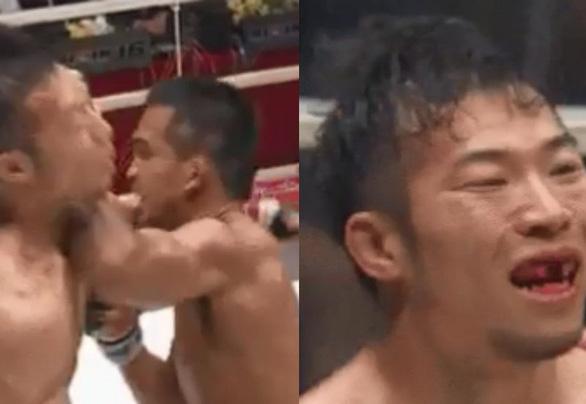 Võ sĩ MMA Nhật bị đối thủ Thái Lan đánh văng răng cửa - Ảnh 1.