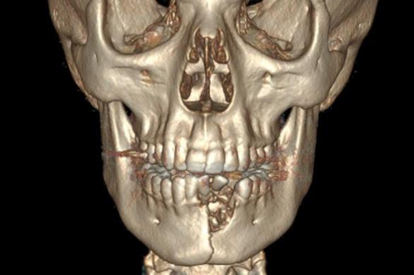 Vỡ hàm, mất răng vì thuốc lá điện tử nổ - Ảnh 2.