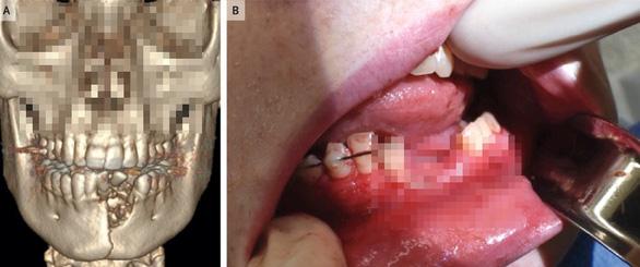 Vỡ hàm, mất răng vì thuốc lá điện tử nổ - Ảnh 1.