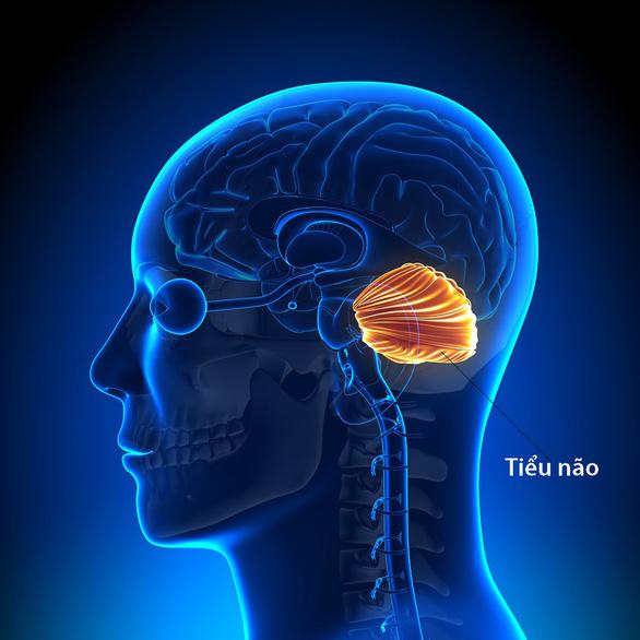 Mất điều hòa và rối loạn chức năng vận động tiểu não - Ảnh 1.