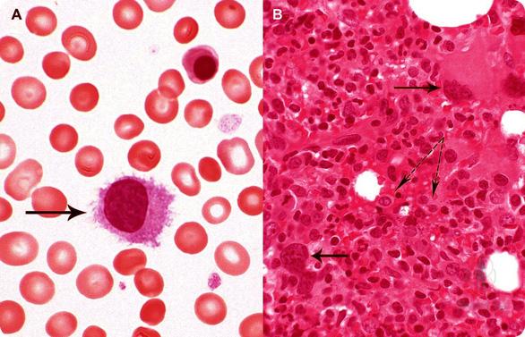 Bệnh đa hồng cầu nguyên phát - Ảnh 1.