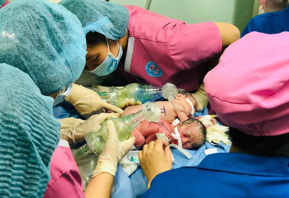 Mổ cứu an toàn hai bé gái song sinh dính chung hậu môn - Ảnh 1.