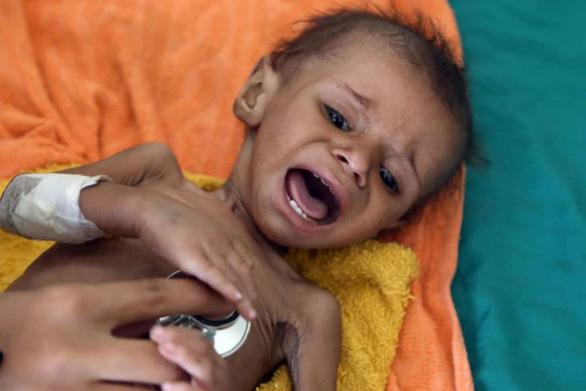 Liên Hiệp Quốc: Thế giới có 821 triệu người nghèo đói - Ảnh 2.