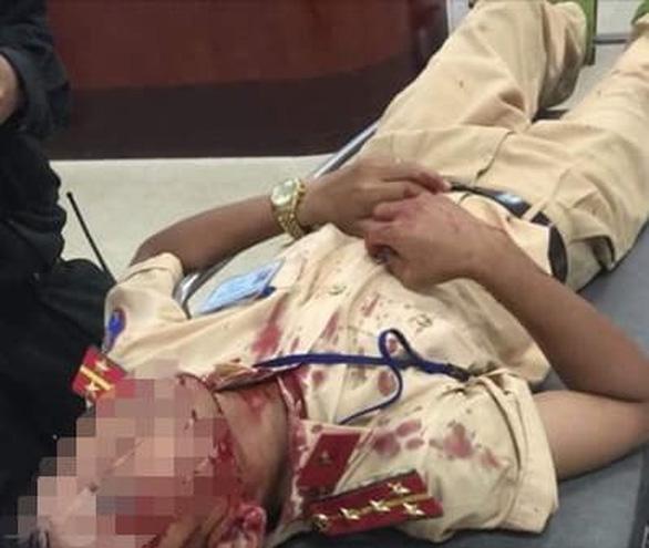 Một đại úy CSGT bị người vi phạm đập đá vào đầu nhập viện - Ảnh 1.