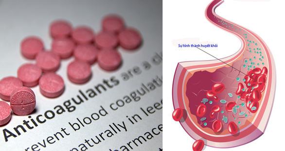Những điều cần ghi nhớ với bệnh nhân sử dụng thuốc chống đông - Ảnh 1.