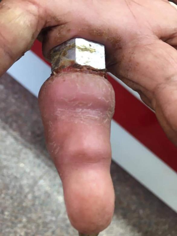 Bà cụ 75 tuổi lấy ốc bulông làm nhẫn suýt mất ngón tay - Ảnh 1.