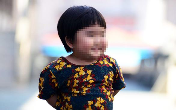 Thừa đạm, chất béo và ít vận động, nhiều trẻ em thành thị phát phì - Ảnh 3.