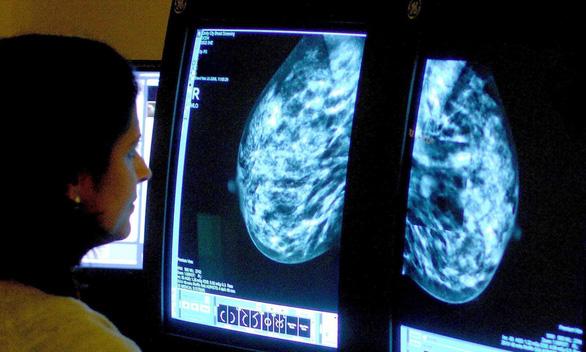 Không dùng cuộc chiến chống ung thư sẽ tốt hơn cho người bệnh? - Ảnh 2.