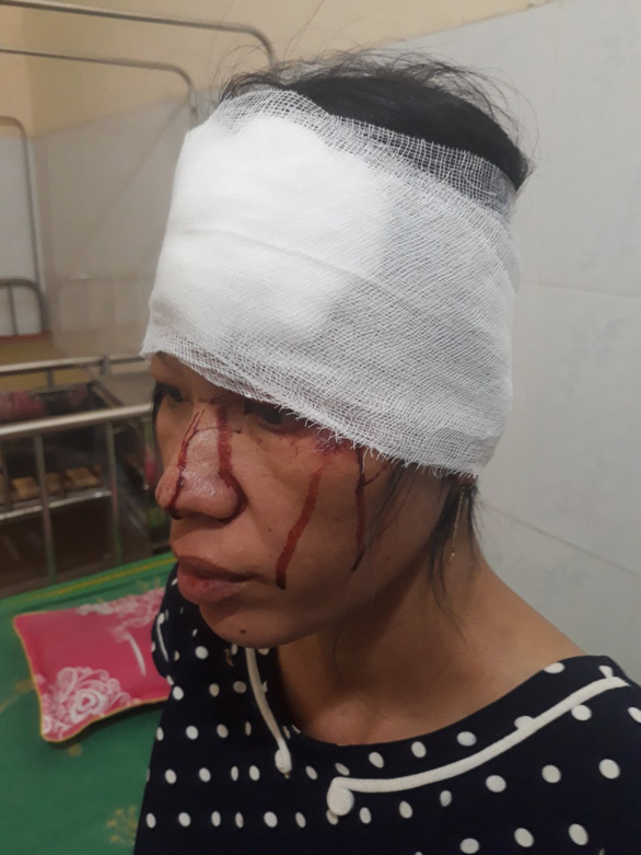Một phụ nữ khuyết tật đang mang thai bị hành hung phải nhập viện - Ảnh 1.