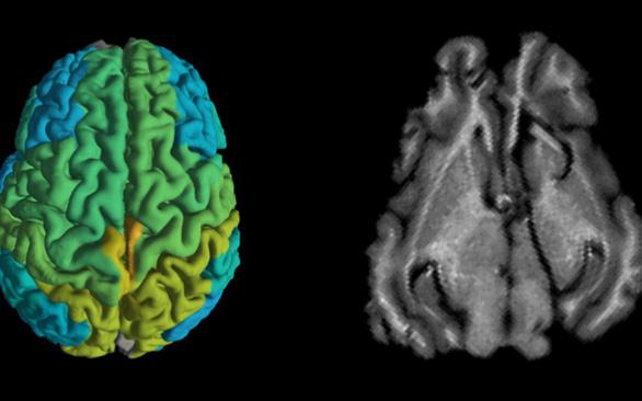 Kỹ thuật MRI mới giúp sớm phát hiện các căn bệnh thoái hóa thần kinh - Ảnh 1.