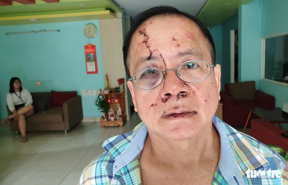 Vụ Việt kiều bị đánh ở karaoke: Công an vào cuộc điều tra - Ảnh 2.