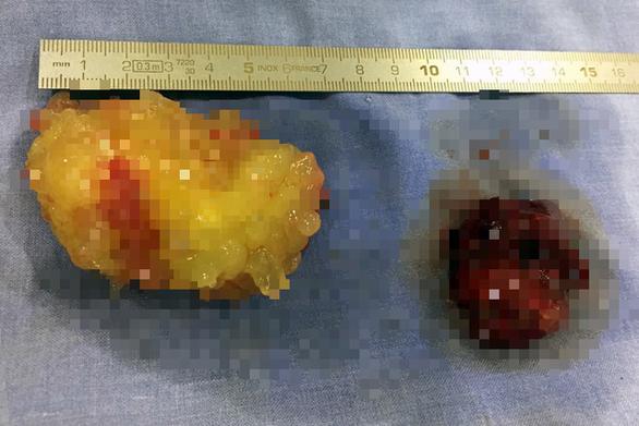 Mổ lấy 2 khối u nhầy di động trong buồng tim bệnh nhân - Ảnh 1.