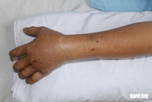 Cứu sống bệnh nhân vừa bị rắn lục đuôi đỏ cắn, vừa đau ruột thừa - Ảnh 2.