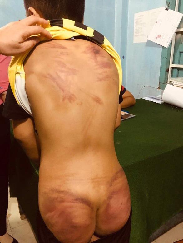 Điều tra vụ cháu bé 11 tuổi bị bạo hành dã man tại cơ sở thờ tự - Ảnh 1.