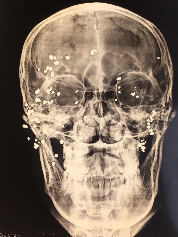 Lấy 39 viên đạn hoa cải nằm 7 tháng trên vùng mặt bệnh nhân - Ảnh 1.