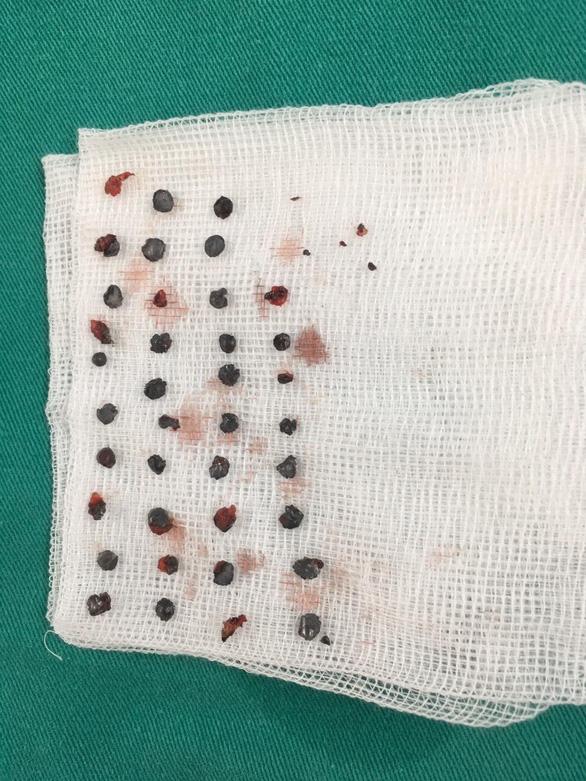 Lấy 39 viên đạn hoa cải nằm 7 tháng trên vùng mặt bệnh nhân - Ảnh 2.