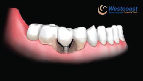 Những biến chứng nguy hiểm khi trồng răng thất bại - Ảnh 1.