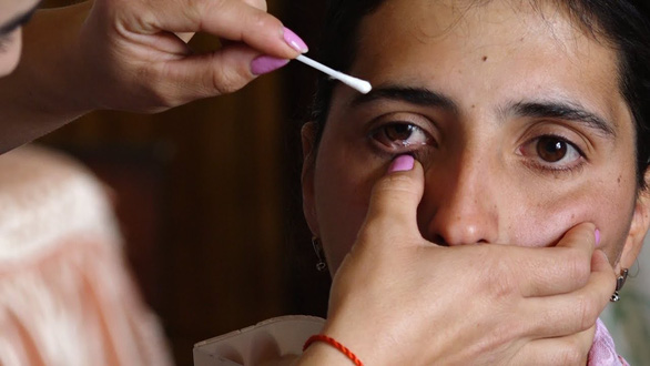 Cô gái mỗi ngày khóc ra 50 hạt... thủy tinh - Ảnh 1.