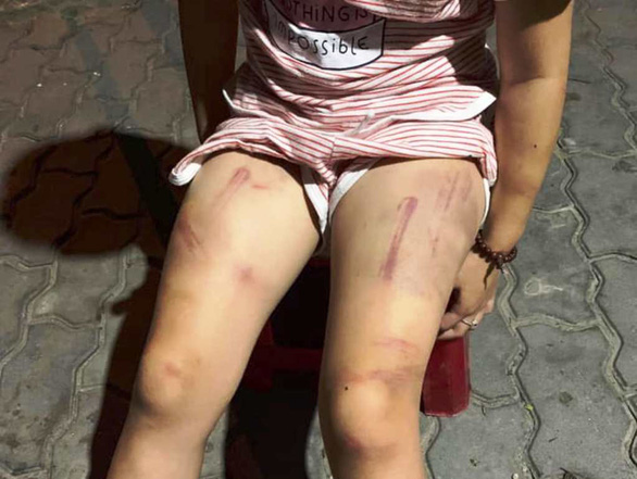 Xác minh vụ cháu bé 6 tuổi bị đánh lằn roi khắp người - Ảnh 1.