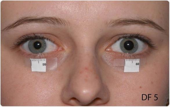 Một số dấu hiệu trên mặt giúp nhận biết sớm ung thư phổi - Ảnh 1.