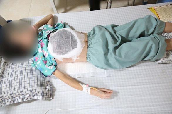 Dùng thuốc nam chữa ung thư, nữ bệnh nhân bị hoại tử một bên ngực - Ảnh 1.