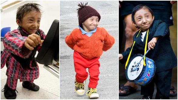 Magar, chàng trai lùn nhất thế giới, qua đời ở tuổi 27 - Ảnh 1.