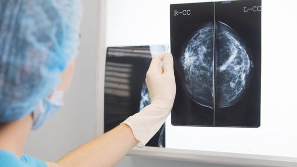 Đấu với bác sĩ chẩn đoán ung thư, trí tuệ nhân tạo thắng - Ảnh 1.