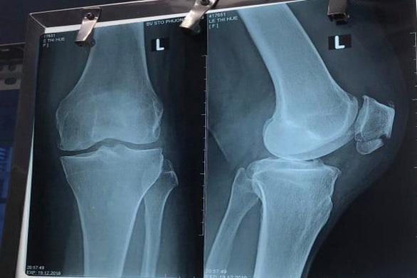 Bệnh nhân tử vong khi chữa gãy xương ở Bệnh viện STO Phương Đông - Ảnh 1.