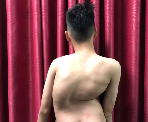 Chàng trai 17 tuổi cao thêm 8cm sau hai lần mổ vẹo cột sống - Ảnh 1.